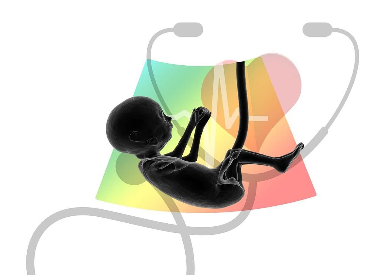 Slăbește înainte de bfp. FIV in Romania - Page - Asociatia SOS Infertilitatea