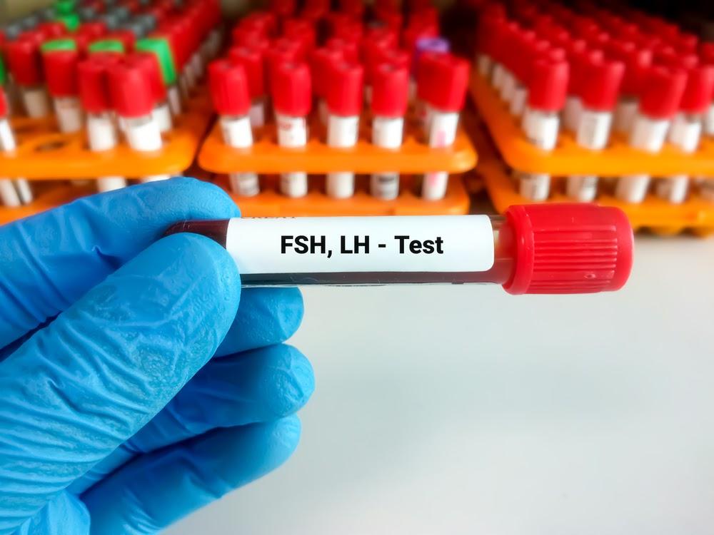 Analize hormonale recomandate pentru diagnosticul infertilității masculine